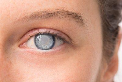 [中環眼科醫生 資訊] 白內障手術概述