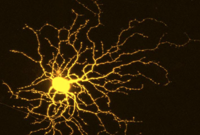 如果酶家族被抑制,受威脅的神經元將存活並存活
